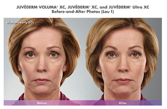Juvederm-Before-and-After-Pics