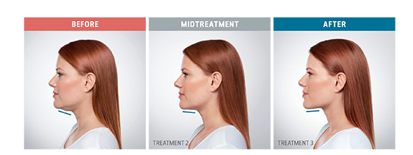kybella-treatment-boca-raton-before-and-after-pics